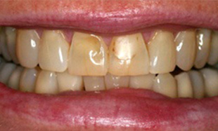 Front teeth with dark lines