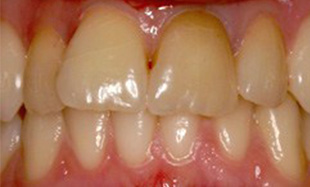 Discolored and misshapen front teeth