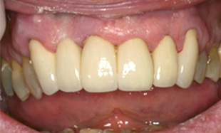 Fully repaired white smile