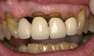 Smile with failing teeth and dark discoloration at gums