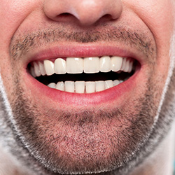 Closeup of man's healthy smile